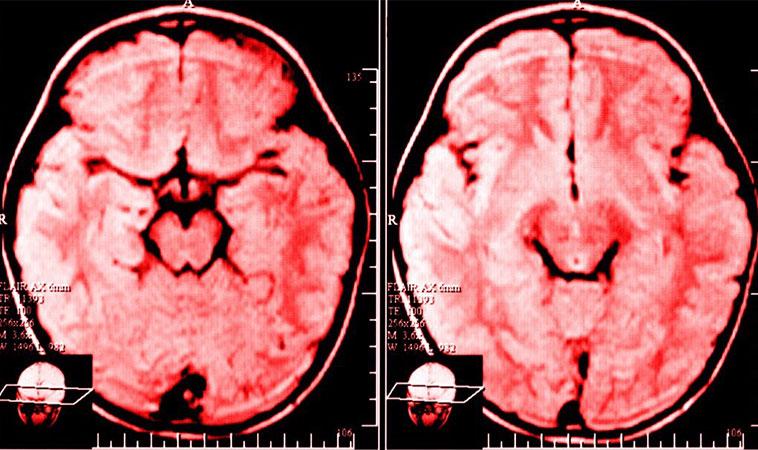 Oamenii de știință explică ce se întâmplă în creierul persoanei care se plânge zilnic