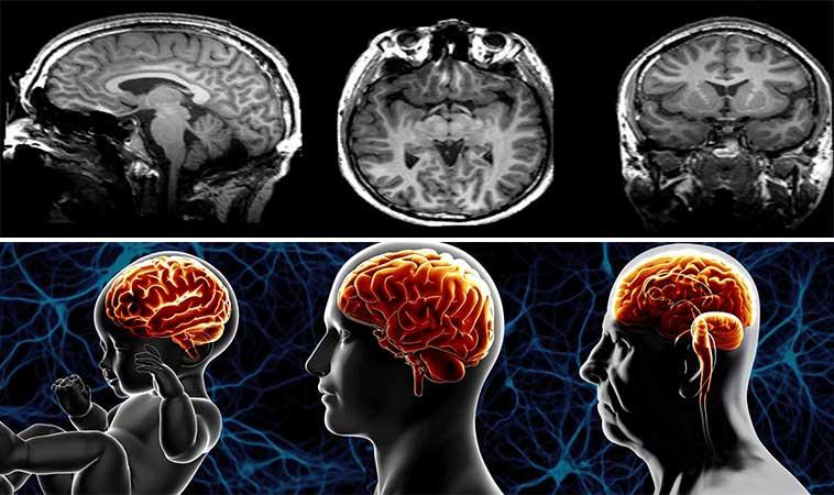 13 obiceiuri care determină îmbătrânirea creierului