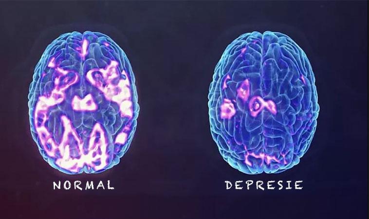 Cercetările spun că depresia nu este o alegere, este o formă de daună cerebrală