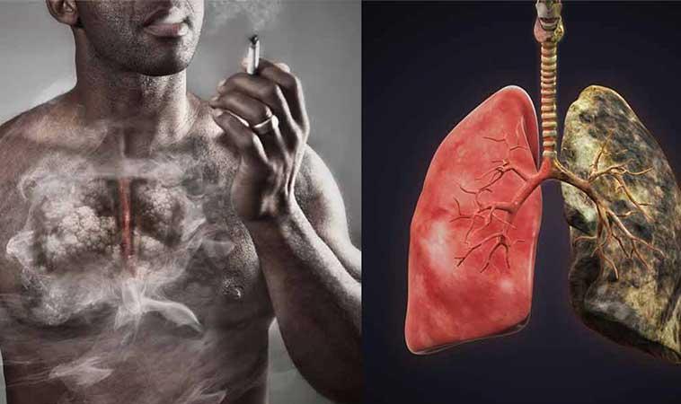 O asistentă explică cum îți afectează fumatul, plămânii!