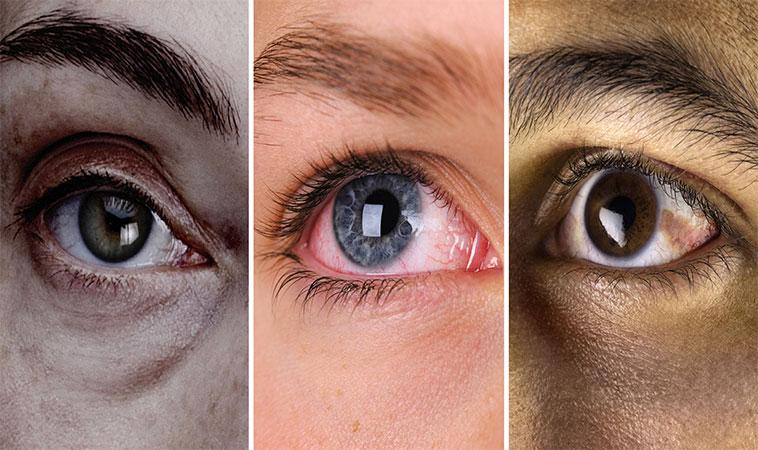 Ochii tăi îți pot spune de ce boală suferi